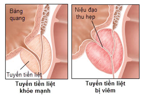 Viêm tuyến tiền liệt là biến chứng nguy hiểm của bệnh lậu nhưng hiếm gặp