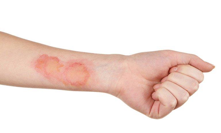 Bệnh lậu ở nam giới - Bệnh lậu có thể gây ra nhiễm trùng da